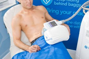 , CoolSculpting