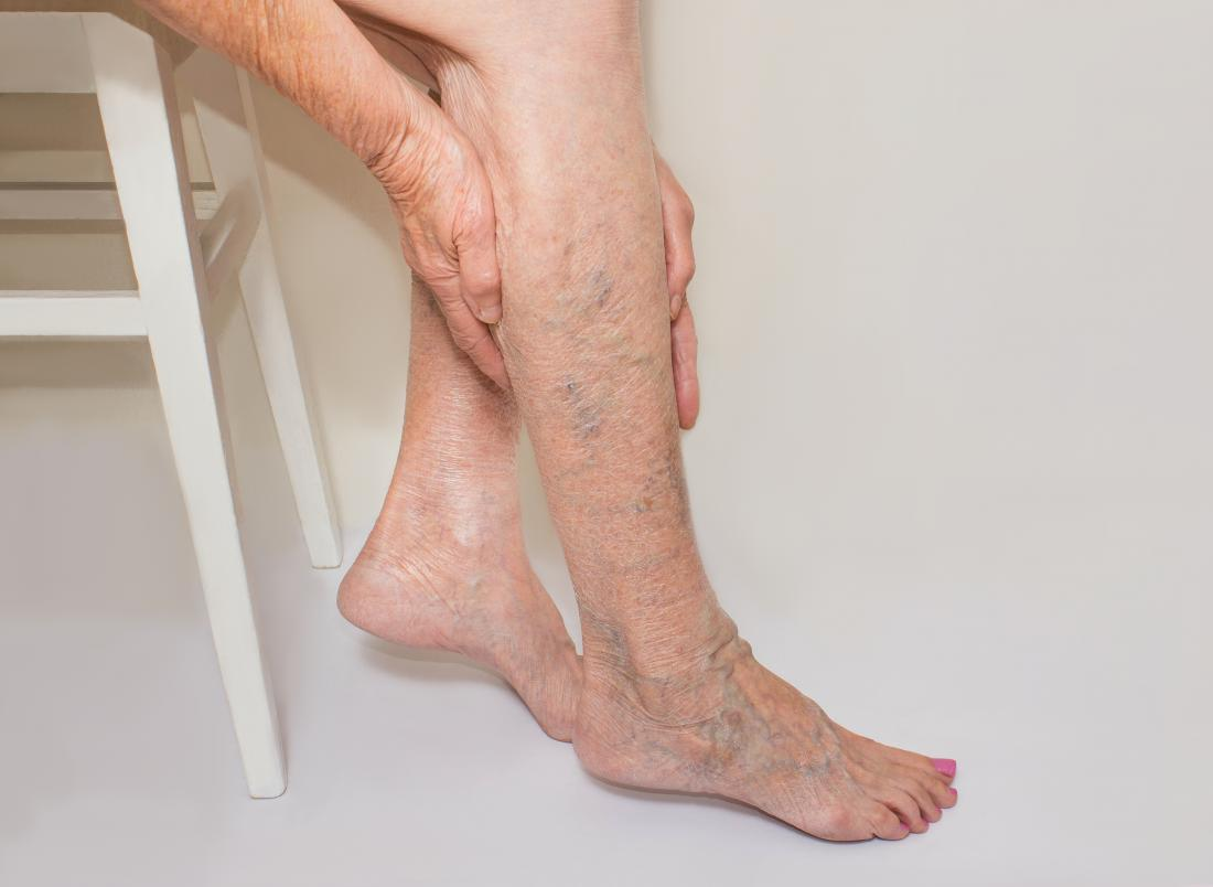 Varicose Vein Treatment, When Should You Consider Varicose Vein Treatment?