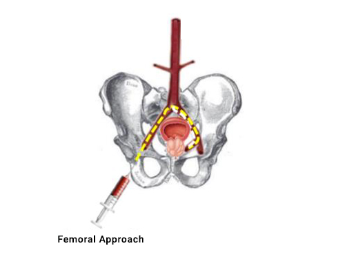 , Prostate Artery Embolization  (PAE)
